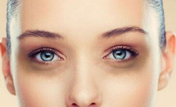 DARK CIRCLES - Dermetone - Skin lightening - Skin brightening - How
